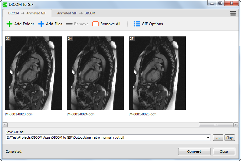 Convert a series of dicom images to a gif animation dicom to gif negle Images